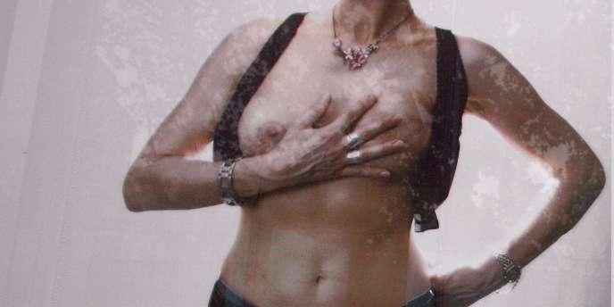 Campagne d'affichage en octobre 2007 sur la façade du ministère de la santé à Paris : des photos de femmes opérées du cancer du sein étaient exposées.
