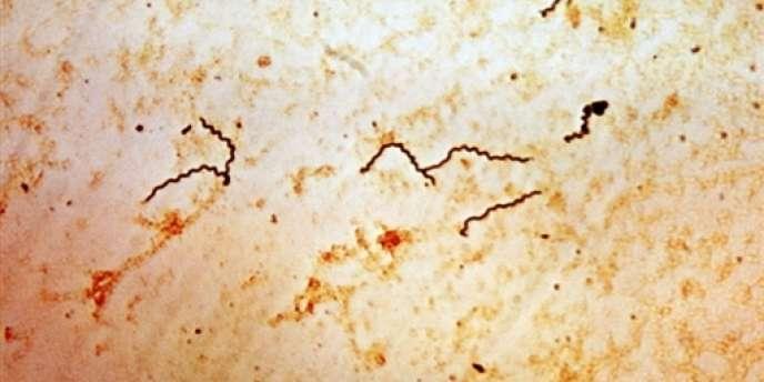 Représentation photographique d'un tréponème, une bactérie du genre des spirochètes, l'agent de la syphilis, réalisée dans le laboratoire de virologie et de bactériologie de l'hôpital Henri-Mondor, à Créteil.