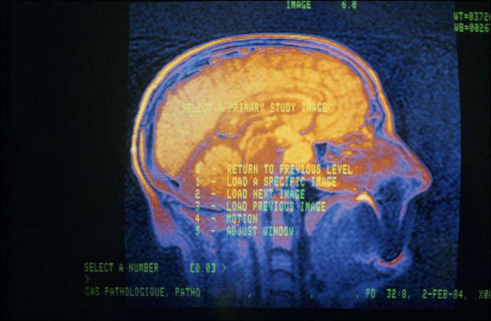 La migraine est une variété de maux de tête récurrents caractérisée par une forte intensité des douleurs et la survenue fréquente d'autres symptômes comme des nausées ou une sensibilité à la lumière et au bruit.