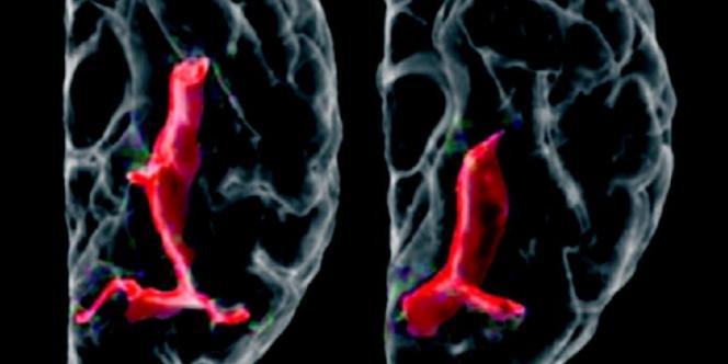 A gauche, le cortex temporal vu du dessous, d'un adolescent témoin. A droite, celui d'un adolescent atteint de schizophrénie.