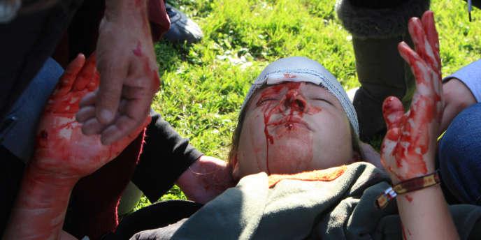 Un jeune homme blessé au visage lors d'une manifestation devant un local du Medef à Caen, mardi 12 octobre.