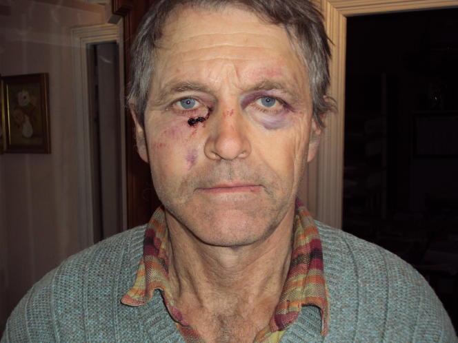 Cliché diffusé par Louis Julian, qui affirme avoir été frappé par un gendarme, lors d'une manifestation le 21 janvier à Anduze.