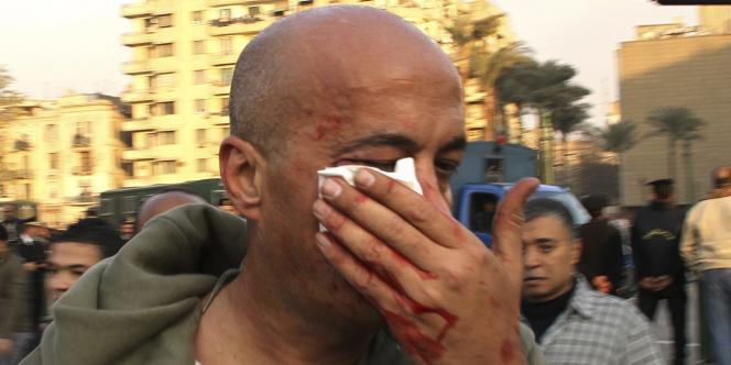 Le photographe Nasser Gamil Nassel, blessé par un policier le 25 janvier 2011.