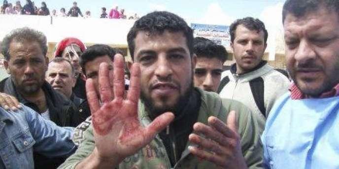 Un manifestant montre sa main ensanglantée lors des funérailles des victimes de la veille, à Izraa, samedi. (document amateur)