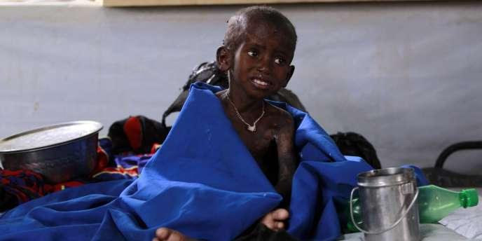 Un enfant souffrant de malnutrition dans un camp de réfugiés à la frontière entre le Kenya et la Somalie, le 28 juillet 2011.