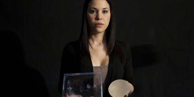 Une journaliste vénézuélienne montre les implants de la société PIP qu'elle a fait retirer au mois de février 2011.