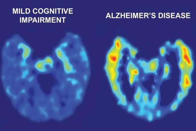 Une image de scanner montre, à gauche, le cerveau d'un patient volontaire souffrant de troubles cognitifs légers, et à droite, le cerveau d'un patient volontaire souffrant de la maladie d'Alzheimer.
