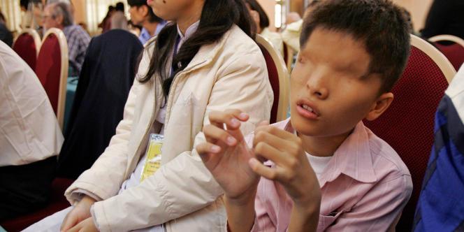Un Vietnamien de 14 ans, victime supposée de l'agent orange.