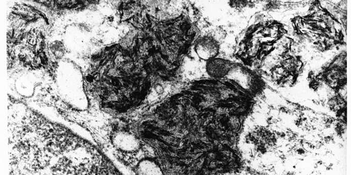 Image en microscopie électronique. Dans le cytoplasme d'un macrophage (cellule du système immunitaire), on retrouve des agglomérats de particules d'adjuvant aluminique.