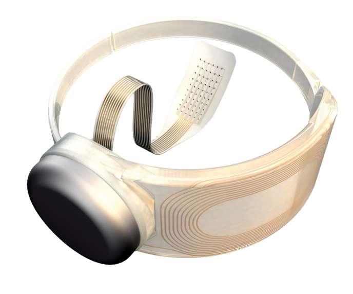 Ce système, mis au point par la société californienne Second Sight Medical Products, est composé d'électrodes implantées dans la rétine et d'une paire de lunettes équipées d'une caméra miniature.