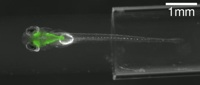Le cerveau et les neurones d'une larve de poisson-zébre apparaissent en lumière fluorescente verte.