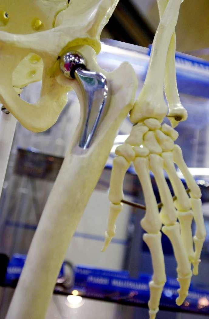 Prothèses de hanche.