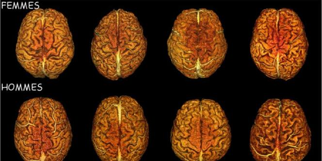 Images de l'anatomie du cerveau montrant la variabilité morphologique entre tous les individus, indépendamment du sexe.