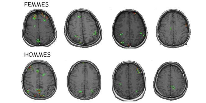 Imagerie cérébrale par IRM fonctionnelle pendant un test de calcul mental. On observe une grande variabilité dans les zones cérébrales activées quelque soit le sexe. Les différences d'activations cérébrales entre les personnes d'un même sexe dépassent les différences entre les sexes.