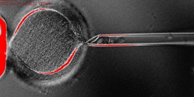 Les chercheurs ont eu recours à une technique consistant à utiliser le noyau des cellules de la peau.