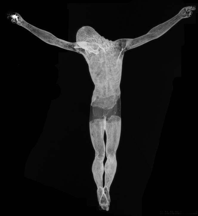 Radiographie en entier.