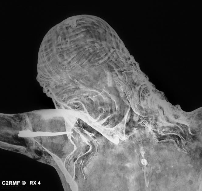 Détail de radiographie du