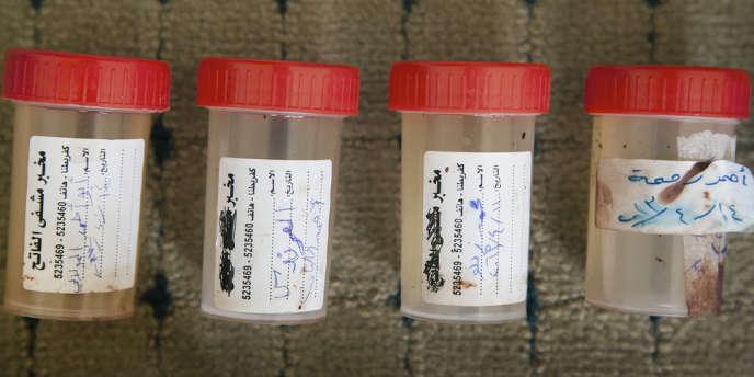 Des échantillons d'urine ont été ramenés de Syrie par les reporteurs du