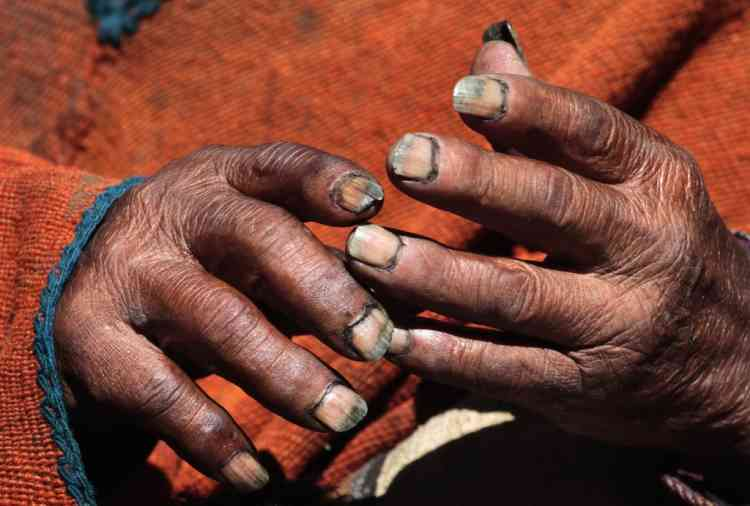 Aymara Indian Carmelo Flores' hands are pictured during an interview with Reuters TV in his hometown of Frasquia, 110km (68 miles) north of La Paz, August 16, 2013. According to Flores' identification card, he was born in 1890 and celebrated his 123rd birthday last month, making him the world's oldest man. Flores, who used to work as a farmer, has lived next to Bolivia's highest mountain, the Illampu, for his entire life. He eats what can hunt, like snake, lizard and fox, only drinks mountain spring water, chews coca leaves, avoids sugar and says that he has never been seriously ill. REUTERS/David Mercado  (BOLIVIA - Tags: SOCIETY)