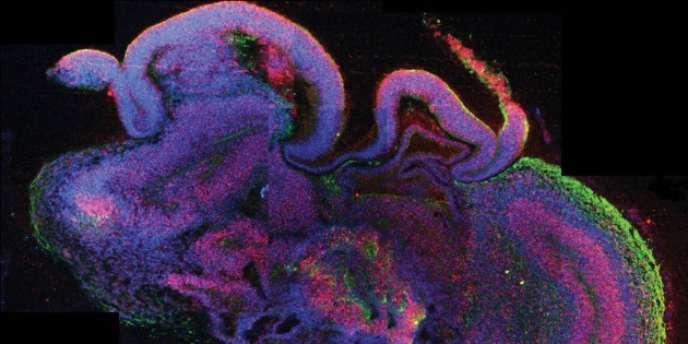 Du tissu cérébral humain créé à partir de cellules souches.