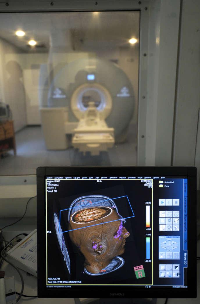 Le partage de données d'imageries cérébrales pourrait améliorer les connaissances sur le cerveau.