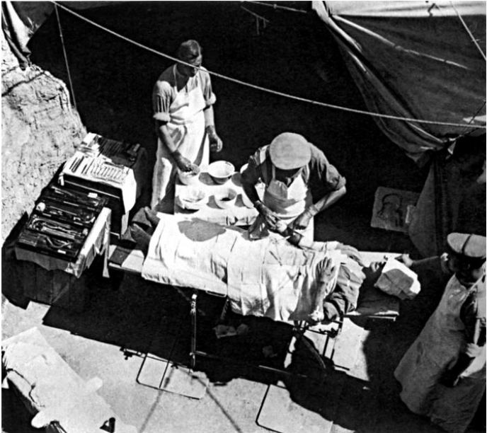 Une opération chirurgicale dans le nord de l'Italie, en 1915. Le soldat opéré faisait partie de la 42e division d'infanterie de l'armée britannique.
