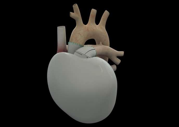 Image de synthèse du cœur artificiel conçu par la société Carmat, dont un premier exemplaire a été implanté sur un patient en insuffisance cardiaque terminale le 18 décembre 2013. Le principe est celui d'une pompe raccordée au système sanguin.