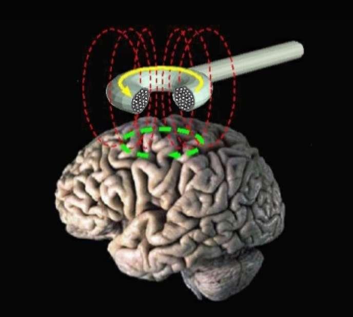 Un système de stimulation magnétique transcrânienne.
