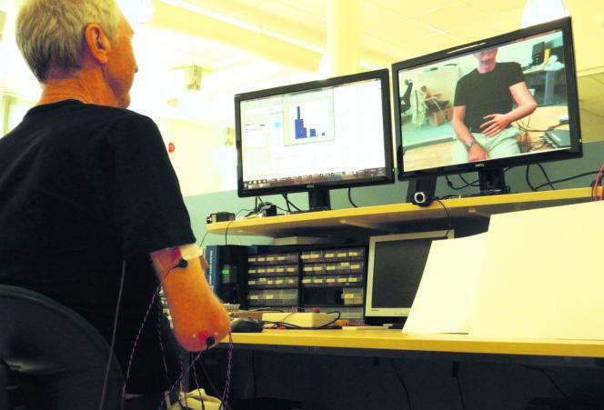 En Suède, des électrodes implantées dans le bras d'un homme amputé ont permis de contrôler une prothèse numérique et de soulager les douleurs dites du