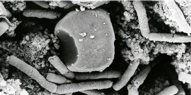 Un accident est survenu dans un laboratoire des CDC à Atlanta en Géorgie, impliquant cette fois de l'anthrax.