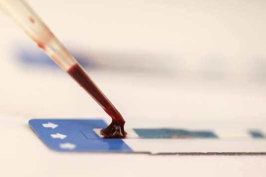 Un test sanguin de détection du VIH.