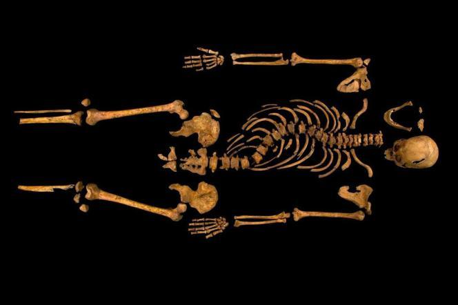 Squelette de Richard III : la scoliose du souverain anglais est bien visible.