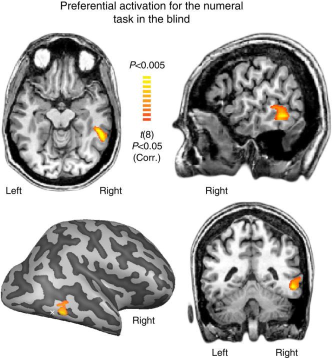 Le cerveau avec l'aire de la forme des nombres