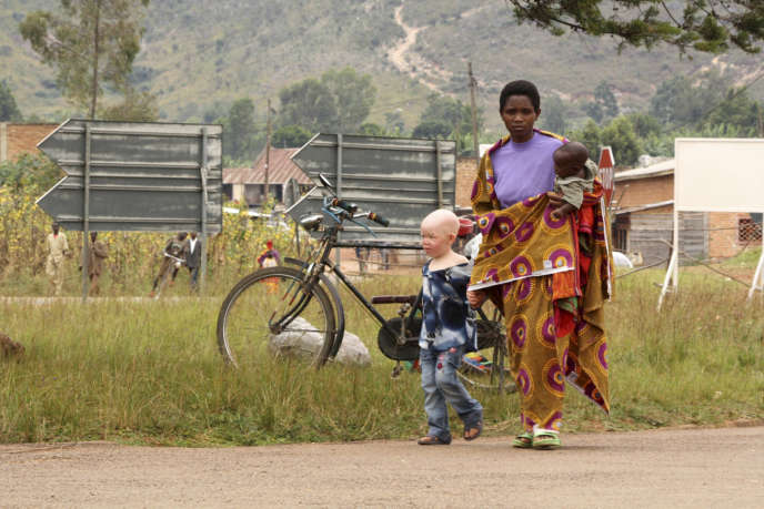 Les albinos exposés aux rayons ultraviolets développent des cancers de la peau plus fréquemment que le reste de la population.