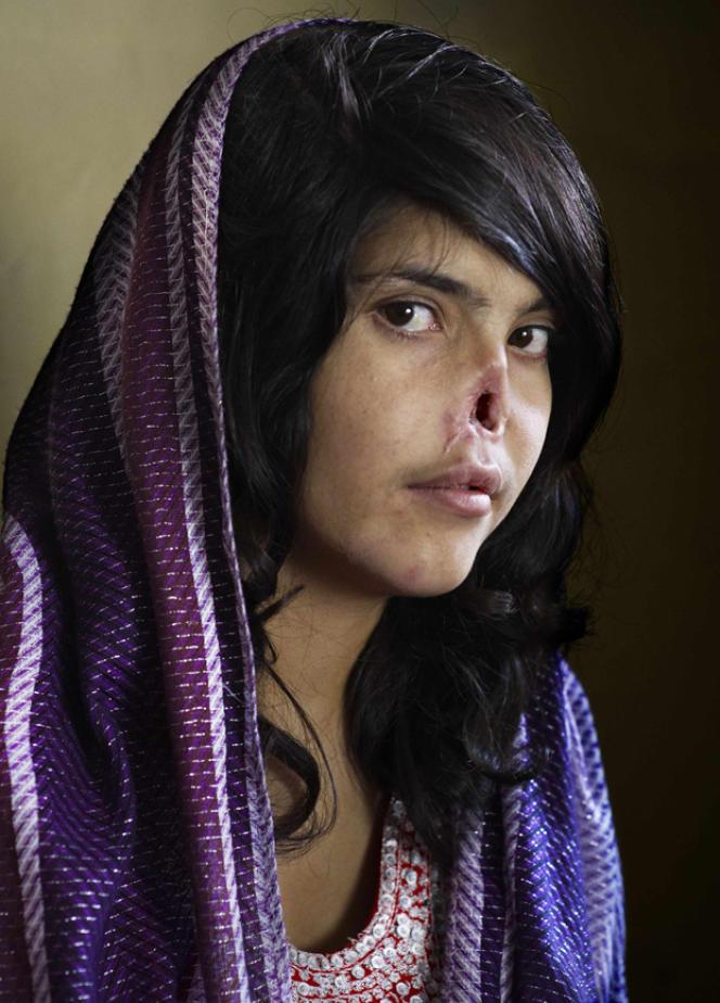 Jodi Bieber, World Press Photo 2010. Portrait de Bibi Aisha, Afghane de 18 ans, qui avait fui son mari violent. Après un jugement prononcé par les talibans, son mari a été autorisé à lui couper le nez et les oreilles.  Elle a ensuite été recueillie par des humanitaires et par l'armée américaine.