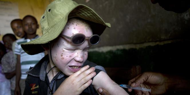 Les organes d'albinos se vendent environ 600 dollars (525 euros) en Tanzanie, un corps entier pouvant aller jusqu'à 75 000 dollars (65 000 euros).