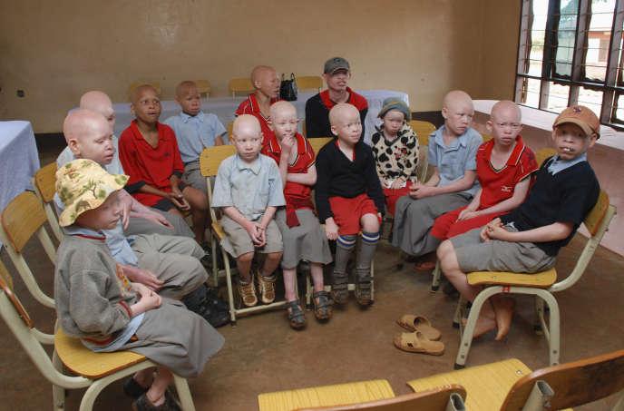 Des enfants albinos, dans une école financée par l'organisation