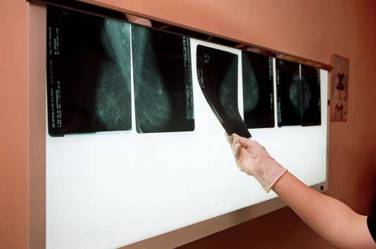 Un médecin examine, le 14 juillet 2001 dans son cabinet médical à Arcueil, près de Paris, les radios du sein d'une patiente afin de détecter un éventuel cancer.