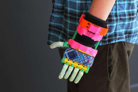 Un enfant de 12 ans a reçu une main imprimée en 3D aux Etats-Unis en 2013.
