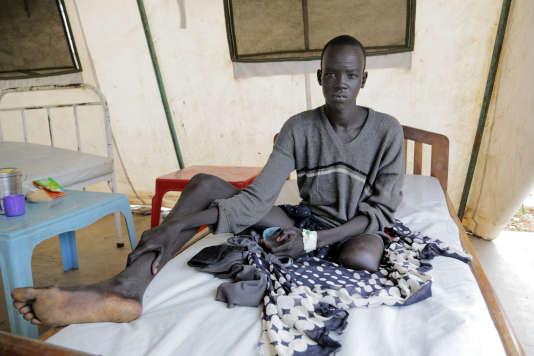 Banywich Bone, 18 ans au moment de la photo, le 8 juillet 2015 à l'hôpital d'Agok, au Soudan du Sud, a dû être amputé de la jambe gauche après une morsure de serpent.