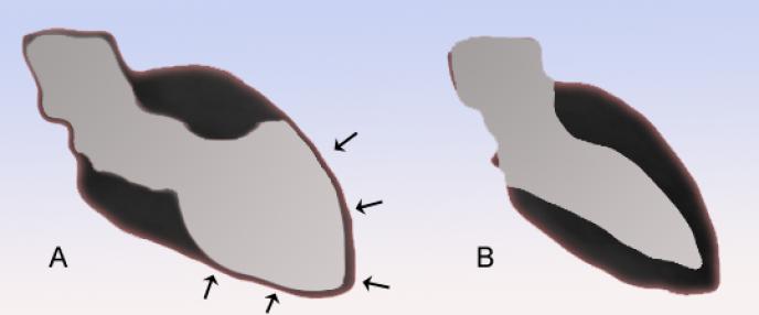 Schémas du ventricule gauche, l'un atteint de takotsubo cardiopathie (A), et l'autre normal (B).