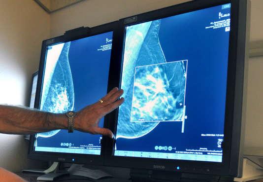 Examen mammographique au Texas, en 2012.