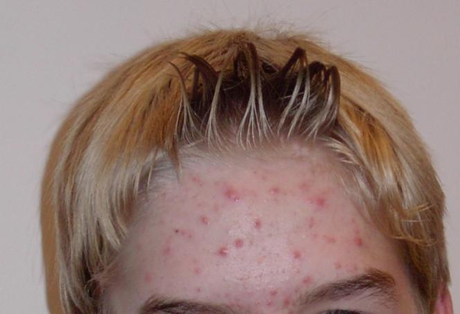Adolescent atteint d'acné juvénile.