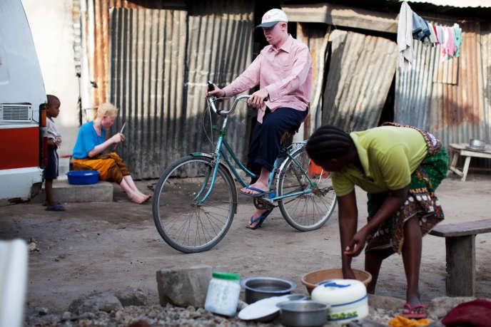 En Tanzanie, une personne sur 1 400 est atteinte d'albinisme.