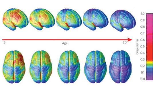 Mise en évidence del'amincissement delamatière grise entre l'âge de 5et 20ans.
