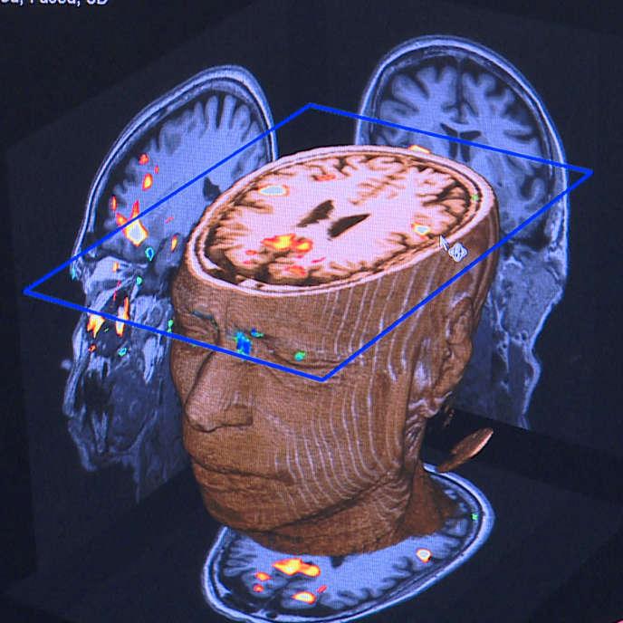 Image du documentaire de Nurith Aviv, «Poétique du cerveau ».