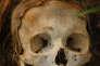 """Crâne humain utilisé pour étudier la décomposition des cadavres dans une """"ferme des morts"""" au Texas."""