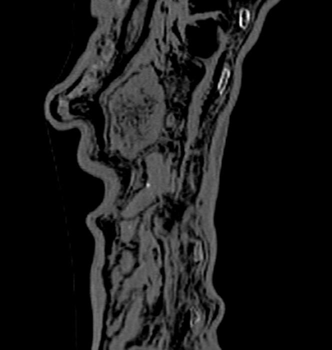 Image aux rayons X de l'estomac et de l'intestin d'Ötzi.