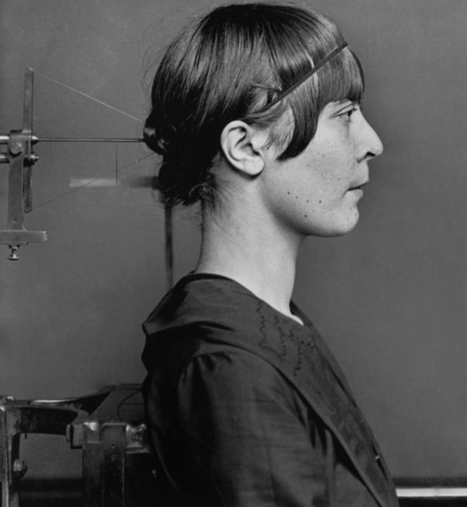 Ouvrière métallurgiste, militante syndicaliste et anarchiste, Germaine Berton, ici photographiée  par la préfecture de police  de Paris, en 1923, après son arrestation pour le meurtre de Marius Plateau, secrétaire  de la Ligue d'Action française. Elle sera acquittée le 24 décembre de la même année.