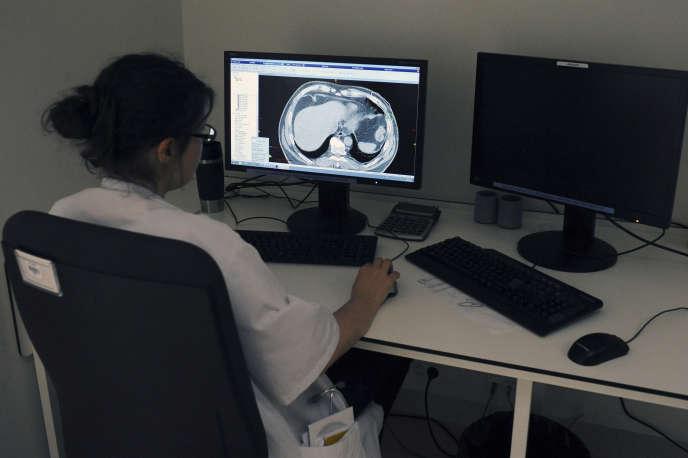 Une médecin en train de regarder une radio des poumons à l'Institut universitaire du cancer de Toulouse (IUCT), enjuin2015.